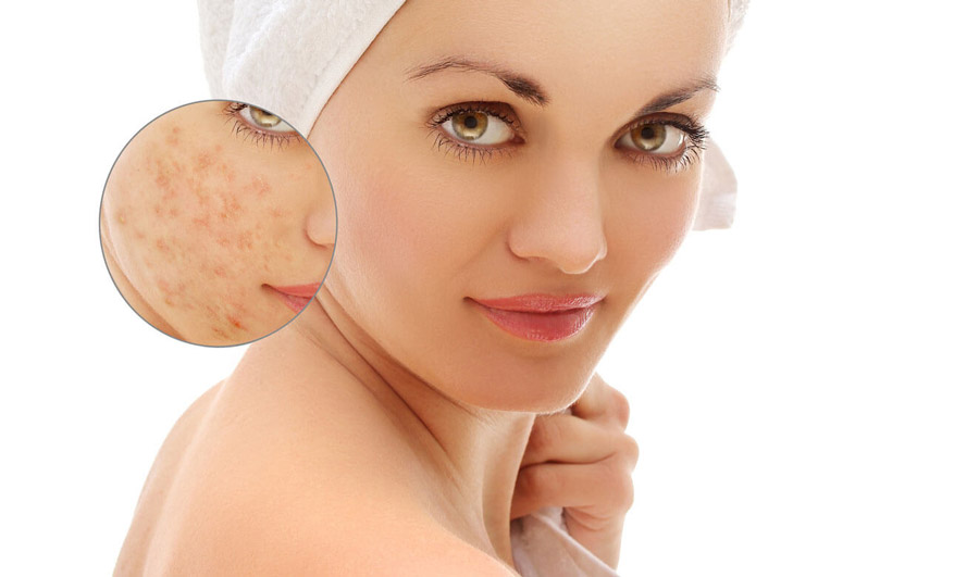 Ways to get rid of pimples overnight at home